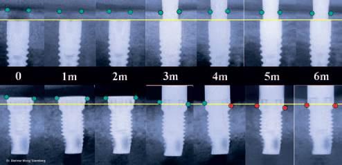 Efectele pompei microbiene asupra implantelor