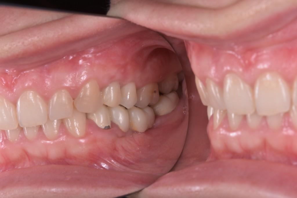 Lucrare provizorie pe implant de urg peste 1 an (1) (FILEminimizer)