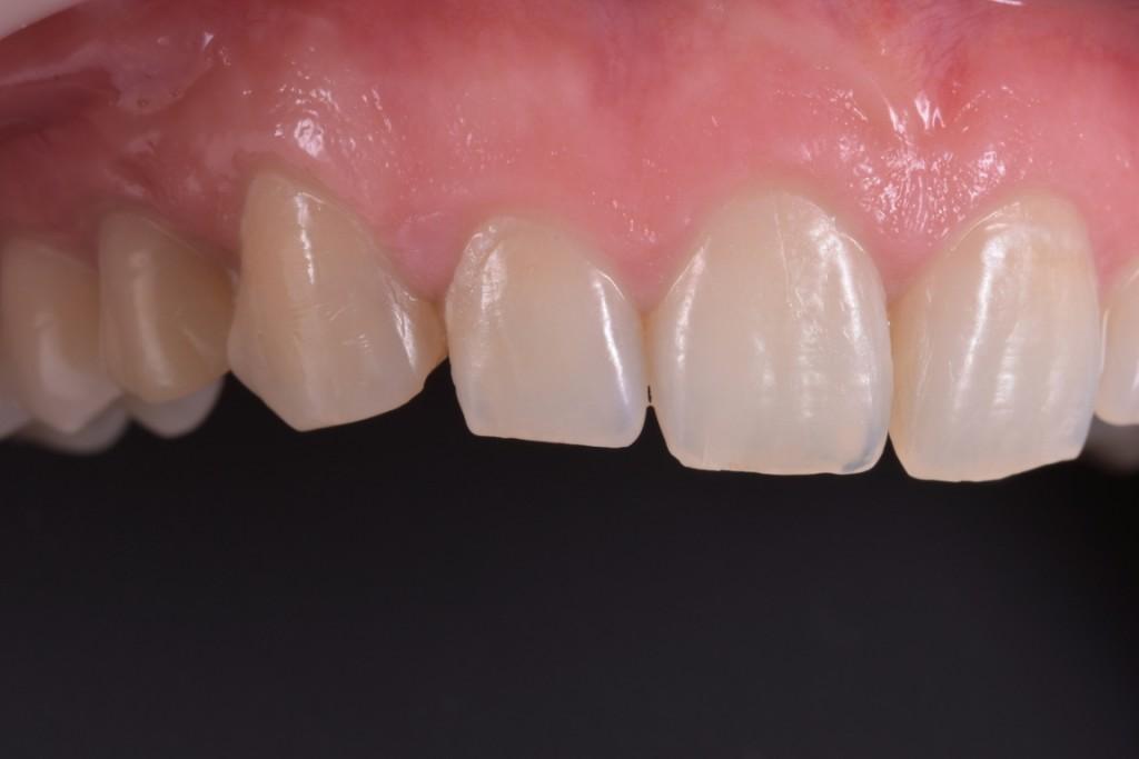 Lucrare provizorie pe implant de urg peste 1 an (2) (FILEminimizer)