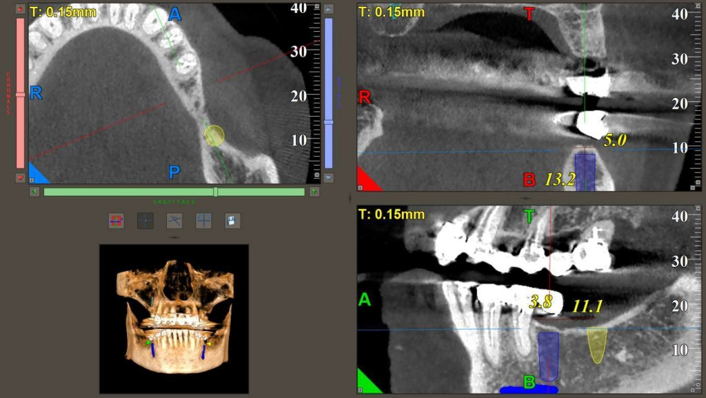 Masuratori pentru insertia implantelor (4) (FILEminimizer)