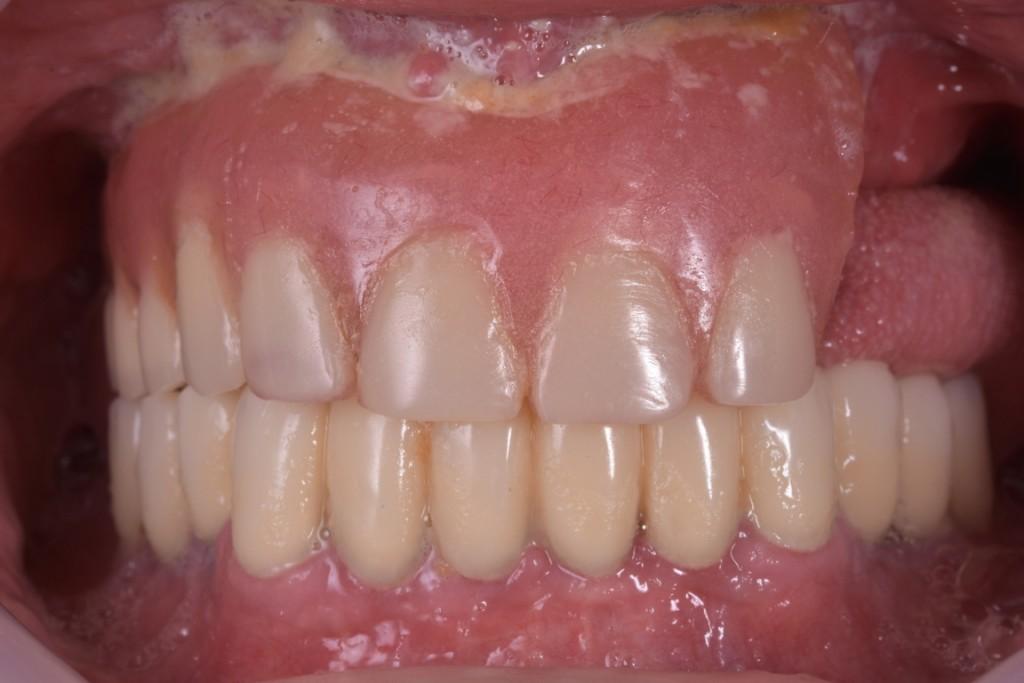 Protezarea imediata pe implante si placa bacteriana adica boala de focar (1) (FILEminimizer)