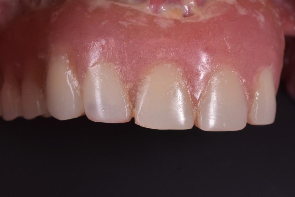 Protezarea imediata pe implante si placa bacteriana adica boala de focar (15) (FILEminimizer)