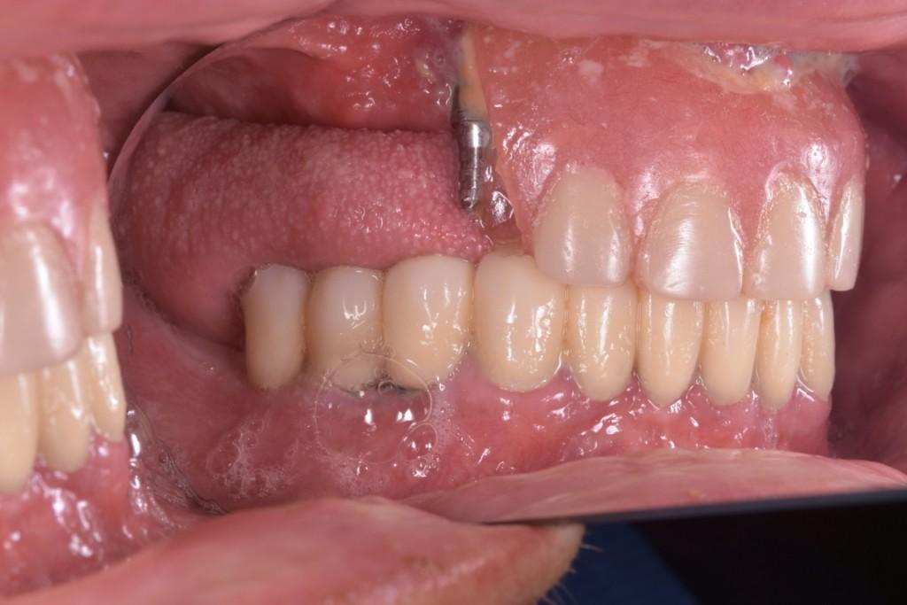Protezarea imediata pe implante si placa bacteriana adica boala de focar (2) (FILEminimizer)