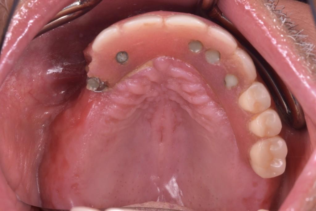 Protezarea imediata pe implante si placa bacteriana adica boala de focar (23) (FILEminimizer)
