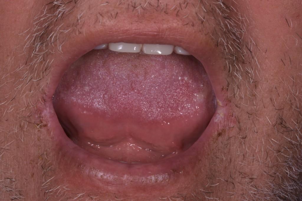 Protezarea imediata pe implante si placa bacteriana adica boala de focar (26) (FILEminimizer)