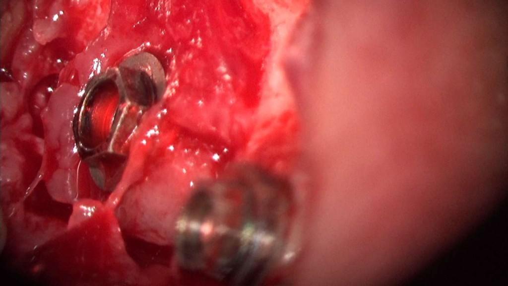 implante imputite datorita instabilitatii bontului (efectul de pompa microbiana) (21) (FILEminimizer)