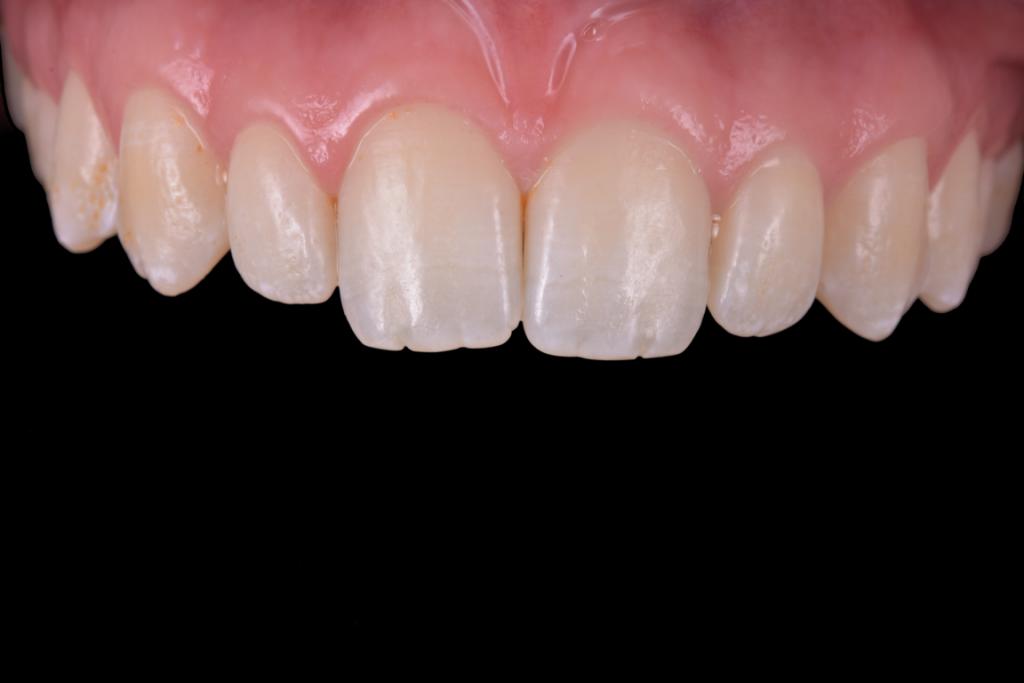 Fluoroza dentara intraoral (1)