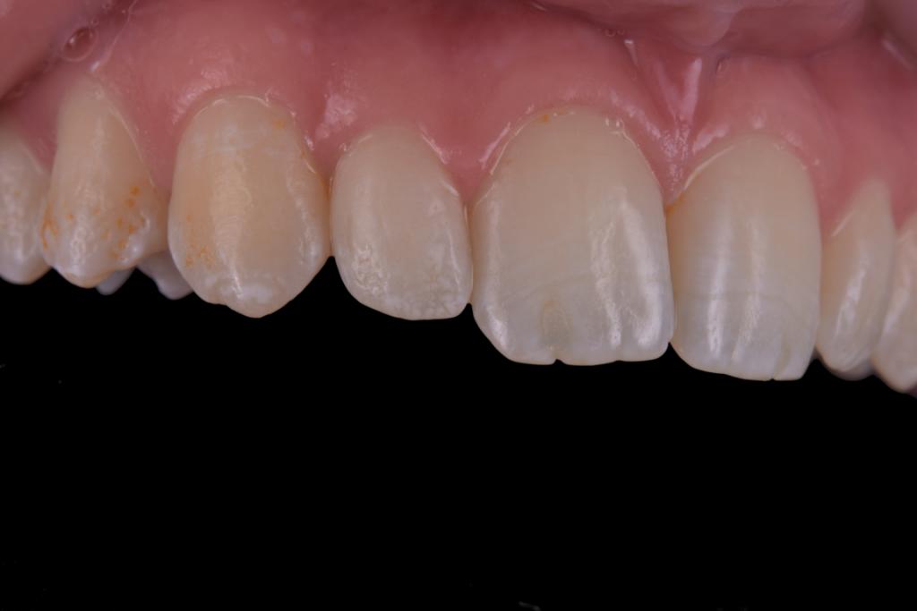 Fluoroza dentara intraoral (3)