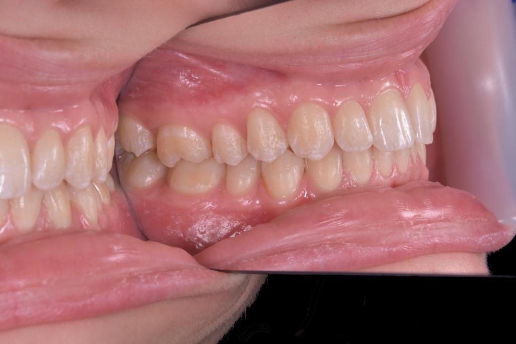 Fluoroza dentara intraoral (6)